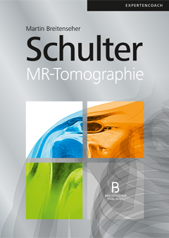 Schulter – MR-Tomographie