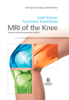 MRI of the Knee 2