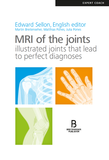 MRI of the joints – draw, understand, memorise, diagnose!